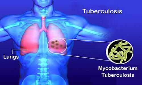 New Method of TB Disease Recognized